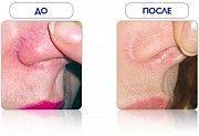 Элос избавление от сосудистых дефектов(купероза) Нежин