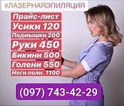 Предлагаем услуги по лазерной эпиляции Переяслав-Хмельницкий